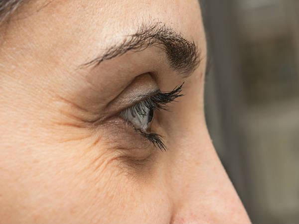 Како уклонити боре на спољашњем углу очију?