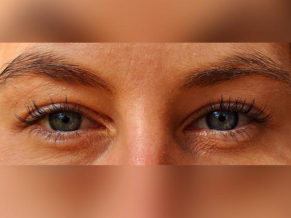 Eyestrain (Asthenopia): sabab, Gejala, Diagnosis Sareng Perawatan