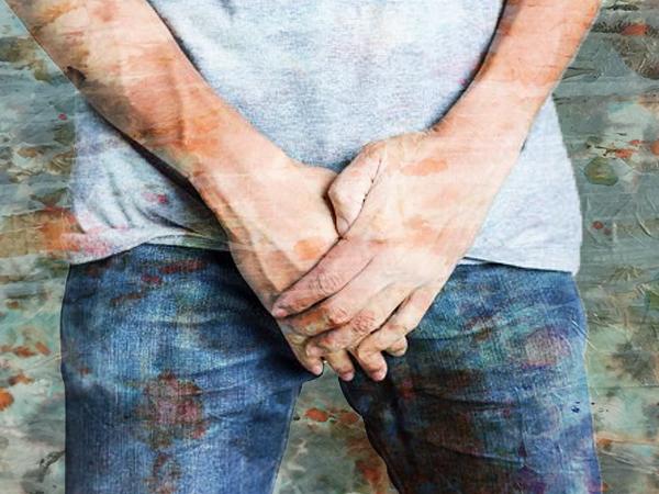 पेनाइल विटिलिगो (विटिलिगो पेनिस): लक्षण, कारण, निदान और उपचार